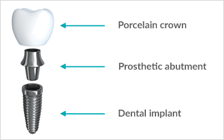 dental implant faqs