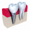 implant dentaire 788x768